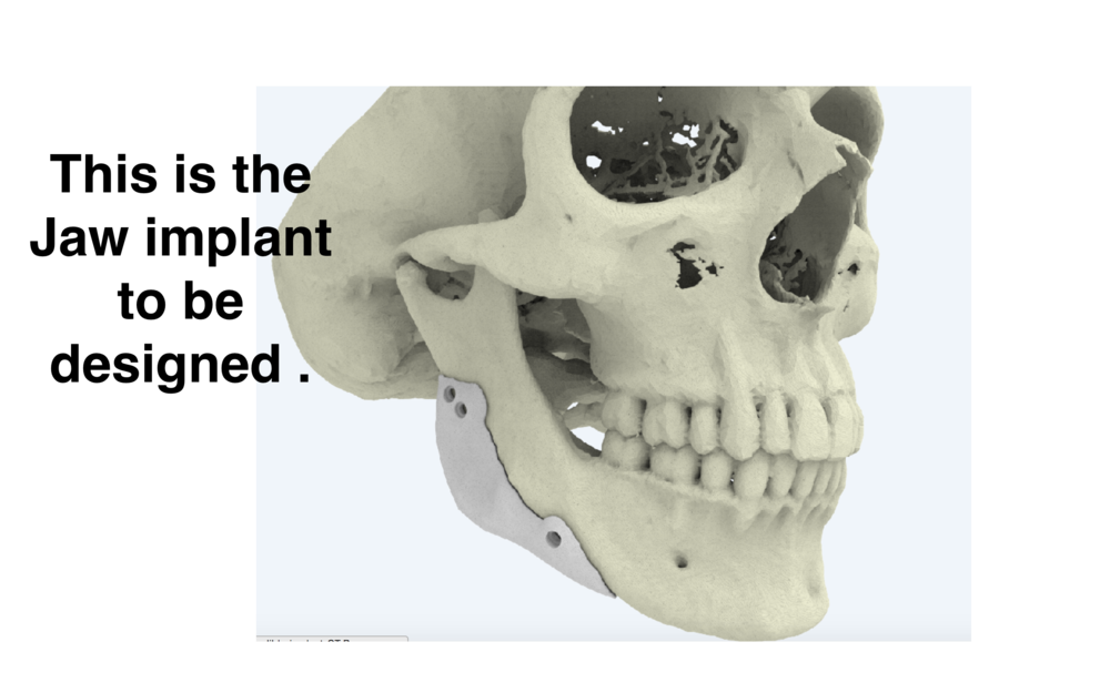 Jaw implant Idea.png