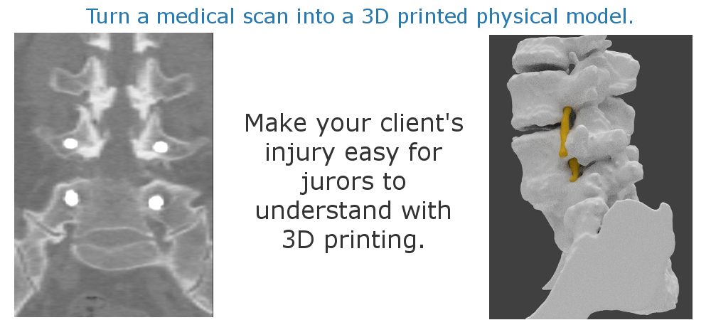 medical_image_to_3d_model_5.png