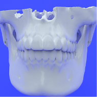 jaw mandible stl file for medical_3d_printing