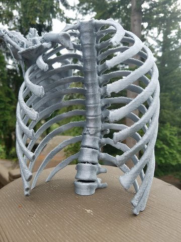 Human thorax with T10 chance fracture, 60% size printed on Utimaker 3E in PLA