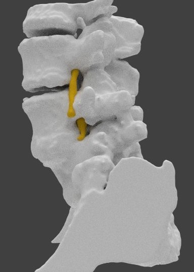 3D Printing a Spine Model to Help a Fellow Doctor with Low Back Pain