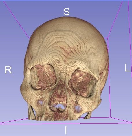 Creating a 3D Printable Skull from a CT Scan in 5 Minutes using Freeware.