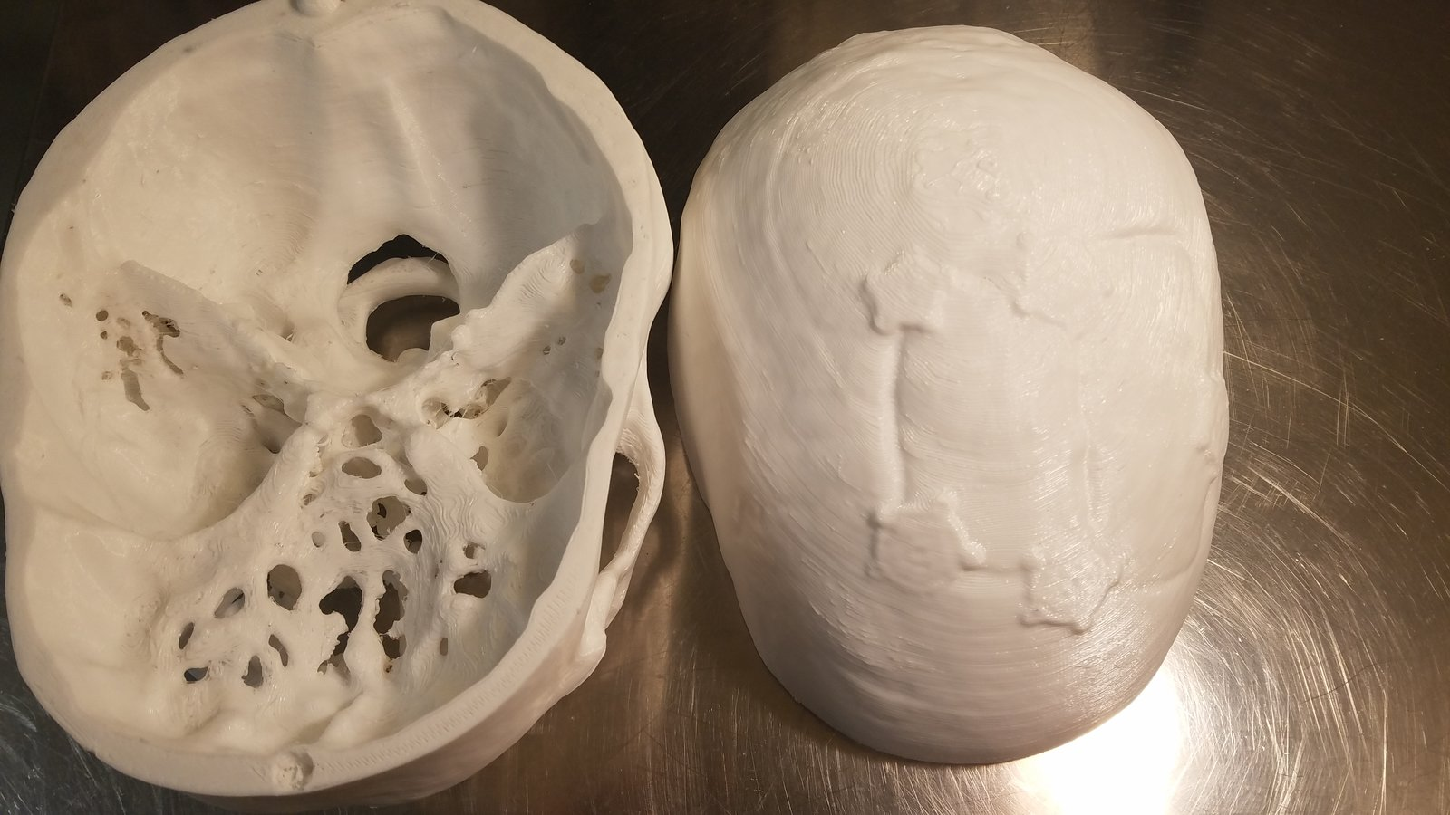 Skull 3D print showing carniotomy defect plus surgical plates