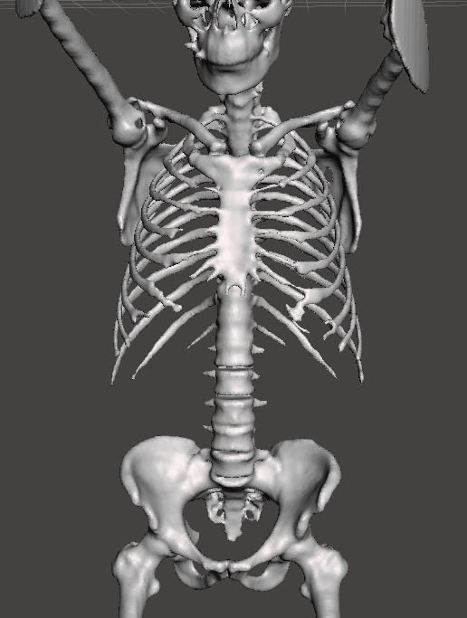 A Ridiculously Easy Way to Convert CT Scans to 3D Printable Bone STL Models for Free in Minutes