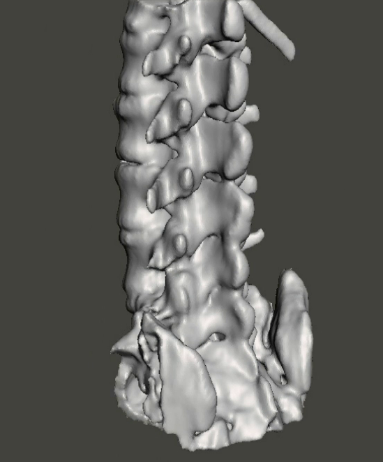 How to Convert Multiple 3D Printable Bone Model STL Files from a CT Scan
