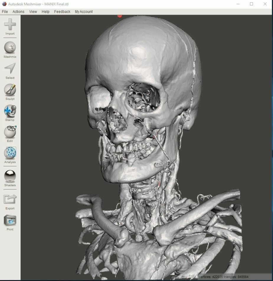 Creating 3D Printable Medical Models and STL Files for Free: Online Services vs. Desktop Software - Slicer and Meshmixer