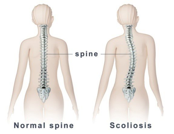 Role of 3D Printing in Scoliosis Correction Surgery