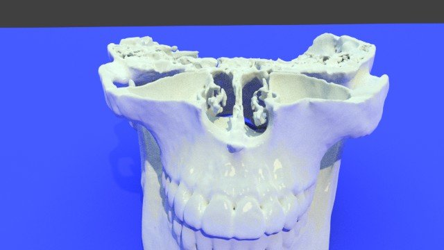 This Week's Top 3D-Printable Dental, Orthodontic, and Maxillofacial Downloads