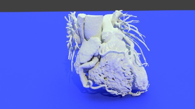 Download a 3D-Printable Human Heart 3D Model — Explore Our Top 10 Downloads!