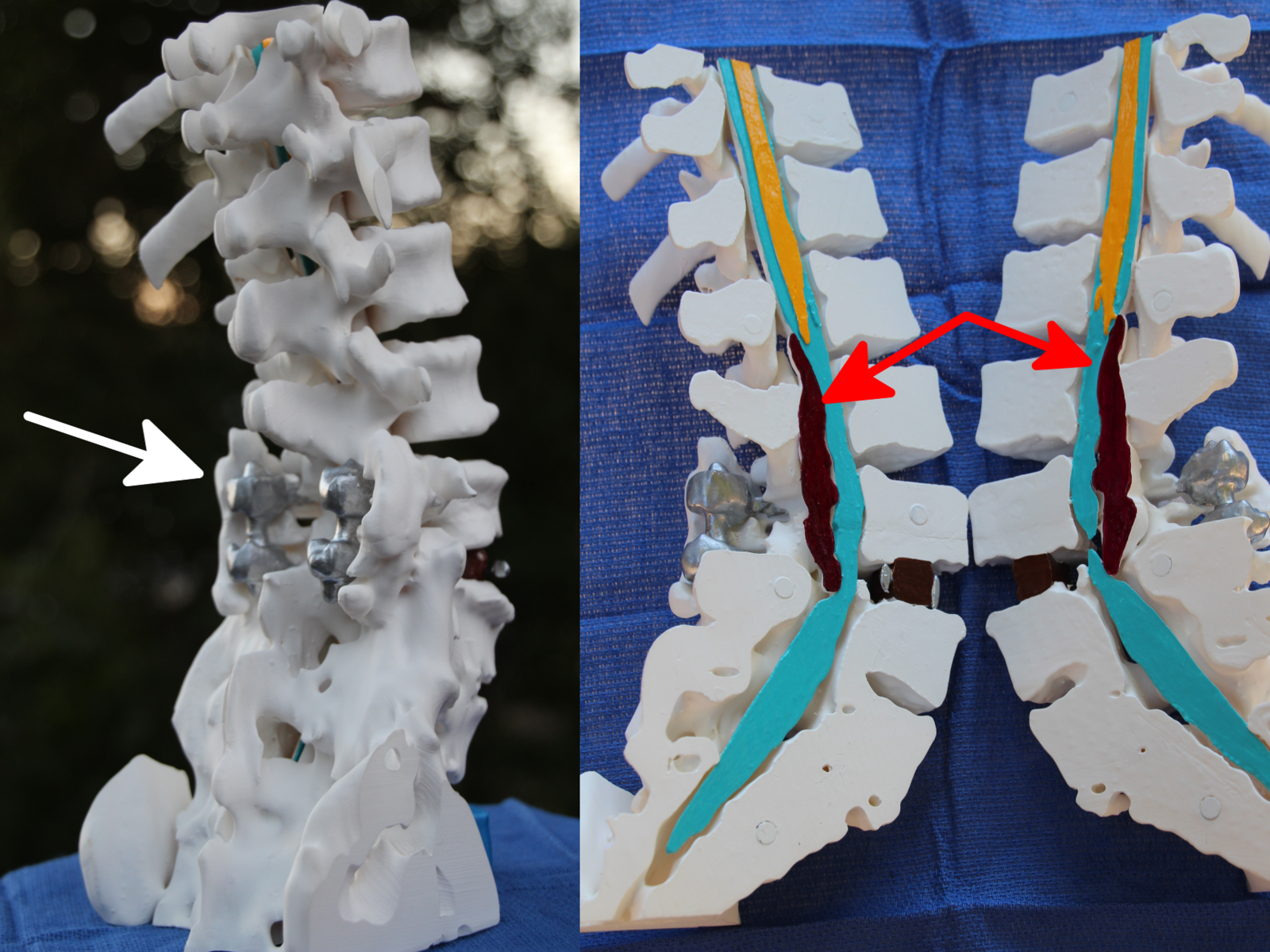 Spine model for trial exhibits