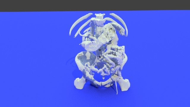 Creating a Stomach Anatomy Model with CT Scans and 3D Printing