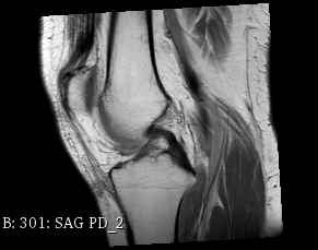 MRI´s Free Top ten on embodi3D®