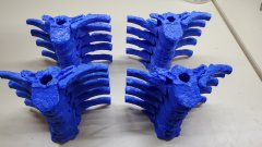 thoracic spine prints in blue PLA