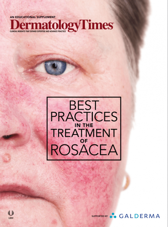 best-practice-treating-rosacea.png