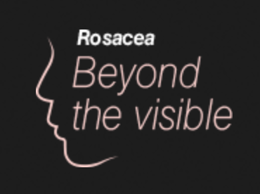 rosaceabti.png.7acd0bc082a5154be4c091b7f