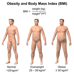 240px-Obesity_&_BMI.png