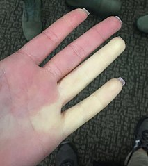 213px-Raynaud_syndrome_on_female_airman's_hand.jpg