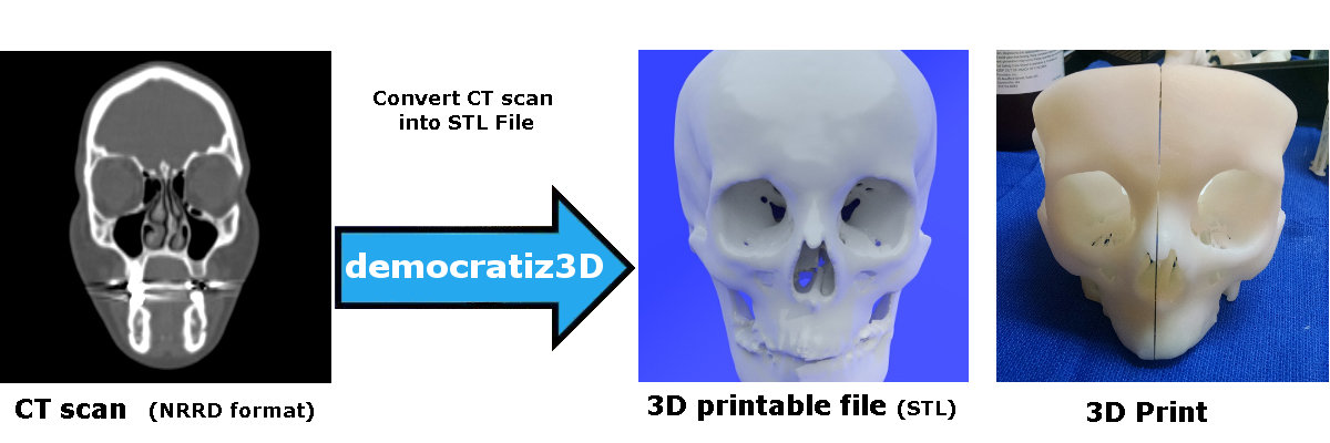 Easily Convert Medical Scans to 3D Printable Models Dicom to