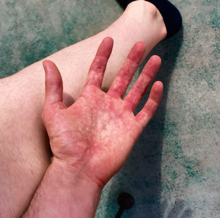 Possible POTS? Burning blood pooling hands - Dysautonomia Discussion