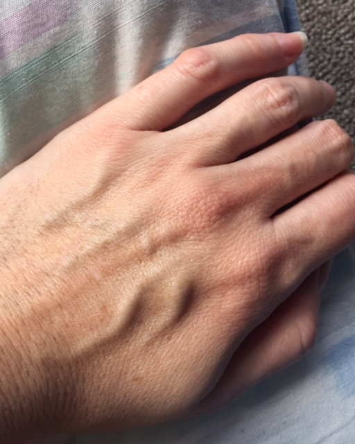 bulging veins in hands with pain