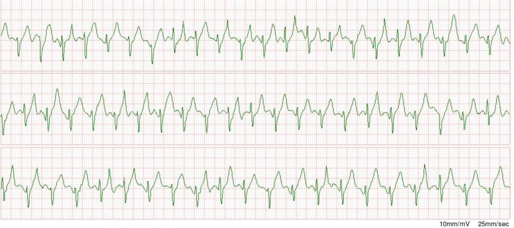 My Worst T wave re LAD occlusion Be suspicious of coronary occlusion when the T wave towers over the R wave de Winter's T waves.jpg